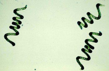 A microscope image of Arthrospira bacteria that are known as Spirulina.