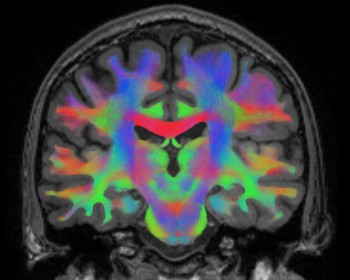 Neural networks showing in MRI scan.