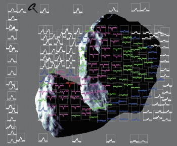 Rosetta_MIRO_Map